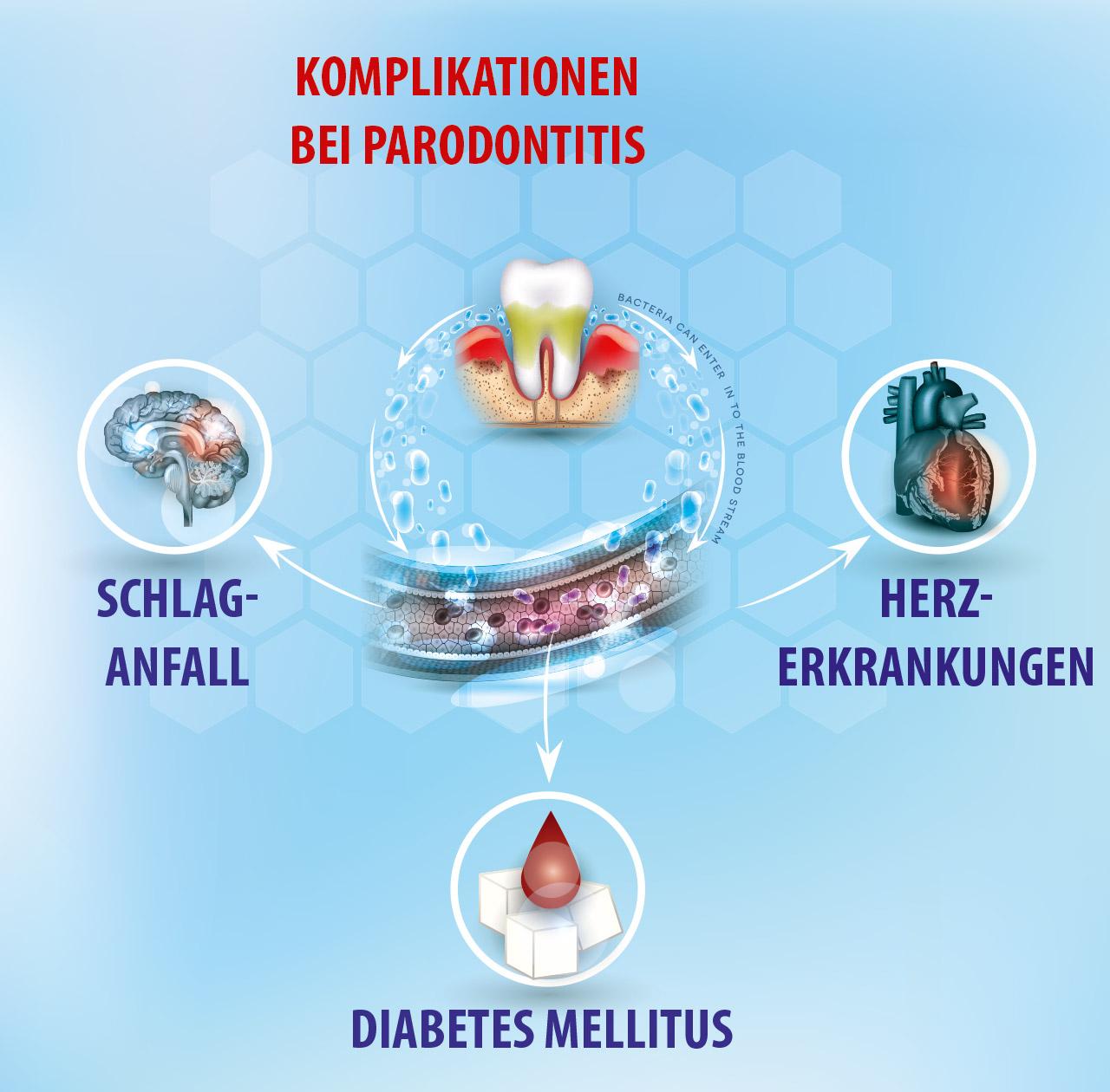 Komplikationen bei Parodontitis
