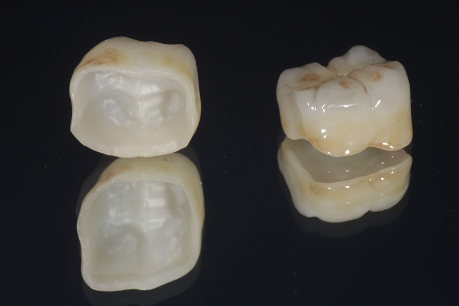 Keramikkrone für den Seitenzahn