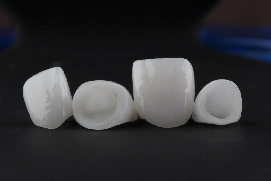 Keramikkronen für Frontzähne