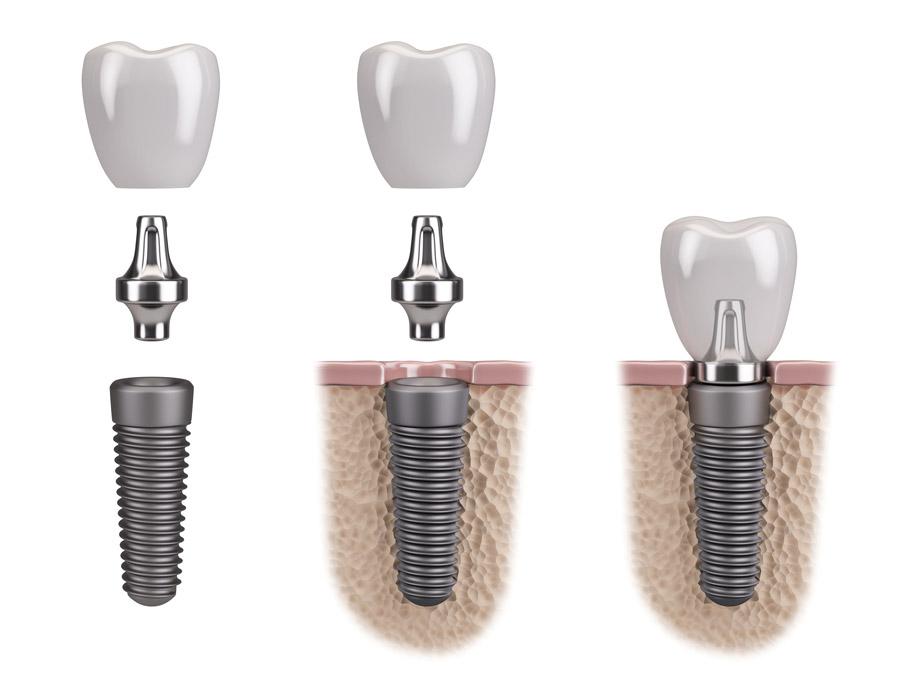 Aufbau einer Implantatversorgung