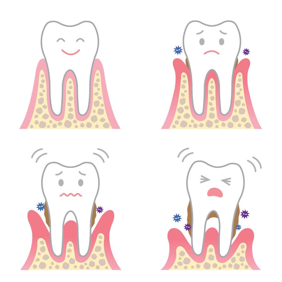 Verlauf einer Parodontitiserkrankung