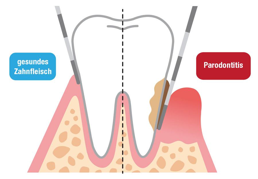 Vergleich von gesundem Zahnfleisch zu Parodontitits